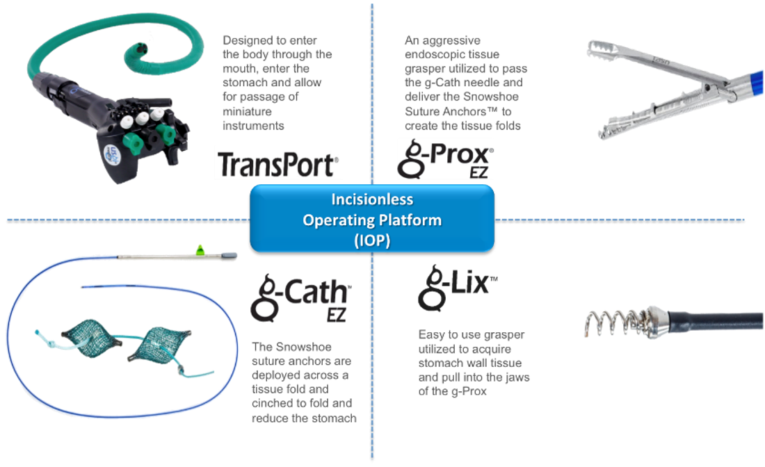 The four components of the IOP System